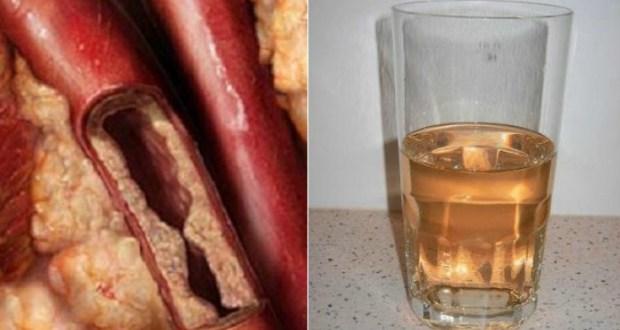 Reinigen Sie Ihre Blutgefäße ganz natürlich mit diesen 2 Zutaten !
