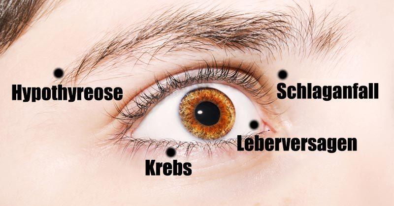 Deine Augen können als Fenster zu deiner Gesundheit fungieren